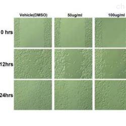 细胞划痕实验