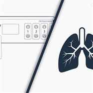 organ-on-chipElveflow 微流控系统 -器官芯片实验装置