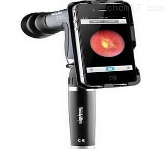 便携式眼底照相机