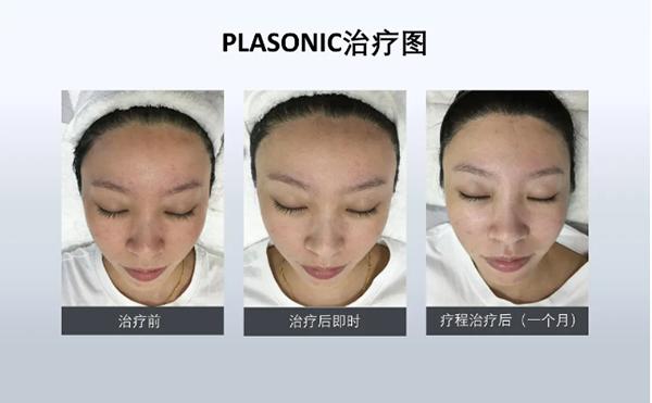 PLASONIC等离子射频美容仪效果